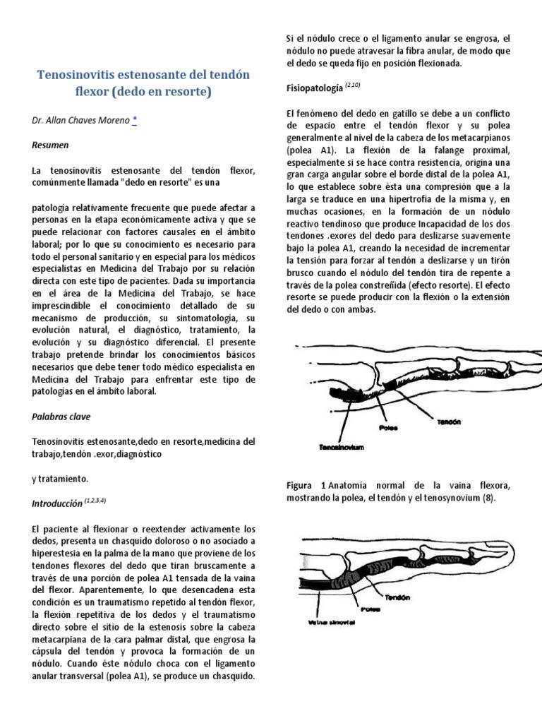 Magnífico Anatomía Del Dedo En Gatillo Colección de Imágenes ...