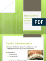 Frenilectomias.pptx