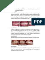 Klasifikasi Maloklusi Angle& Dewey.docx