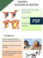 tumores de prostata.pptx