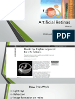 Artificial Retinas