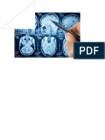 Sclerosi Multipla Diagnosi, Centri Sclerosi Multipla, Come Curare La Sclerosi Multipla.pdf