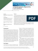 pleural eff.pdf