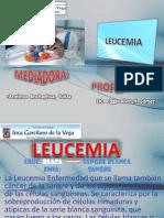 EXPISICION_leucemia.pptx