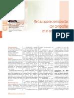 173_CIENCIA_Restauraciones_semidirectas_composites.pdf