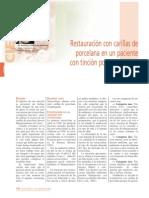 173_CIENCIA_Restauracion_carillas_porcelana.pdf