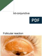Lid Conjuctiva Images