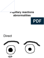Pupillary Reactions Abnormalities
