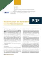 244_CIENCIA_Reconstruccion_diente_blanqueado.pdf