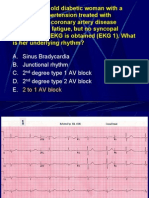 Bradycardia Tutorial Questions/Critical care board review