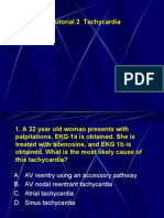 Tachycardia Tutorial Questions/Critical care Board review