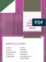 Nn. Ria 18 thn Fraktur Femur Dextra.pptx