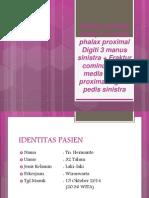Tn. Hermanto 32 thn Fraktur media phalax proximal digiti III manus s.pptx