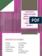 Tn. Mustakim 34 thn v.laseratum regio dorsalis pedis + susp rupture tendon +shock hipovolemik grade1.pptx