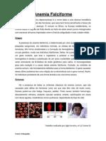 Anemia Falciforme.docx