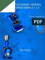 TOS FERINA, HERPES VIRUS SIMPLE 1 y.pptx