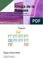 Traquea (histología).pptx