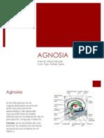 PRESENTACIONseminario 4 agnosia.pptx