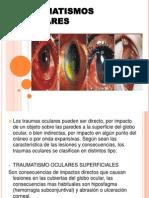 TRAUMATISMO OCULARES.pptx