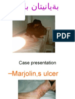 Marjolins Ulcer