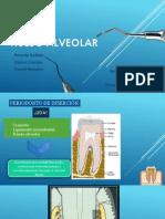 Hueso Alveolar.pptx
