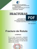 fracturas MsIs.pptx