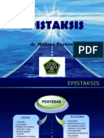 epistaksis.ppt