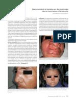 Lesiones centrofaciales en dermatologia.pdf