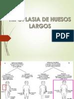 Hipoplasia de Huesos Largos_GMWG_7pm1.pptx