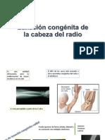 Luxación congénita de la cabeza del radio.pptx