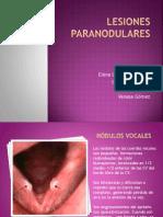 1.Trabajo Nódulos vocales.pptx