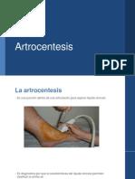 Artrosentesis.pptx