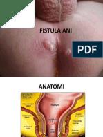 Fistula Ani