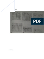 Gambaran EKG berbagai macam penyakit.doc