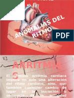 ANOMALIAS DEL RITMO.pptx