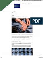 La cura al Parkinson podría estar en tu goma de mascar - Ojo Cientifico.pdf