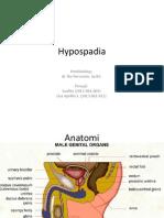 hypospadia