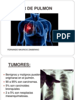 CANCER DE PULMON.pptx