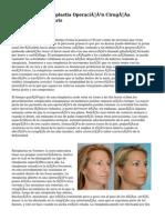 Rinoplastia Operación Cirugía Estética De Nariz