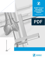 MDN_Femoral_Retrograde_Intramedullary_Fixation_Surgical_Technique_97-2252-009-01_rev2_09_2011.pdf