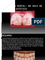 Fluorosis dental inves.pptx