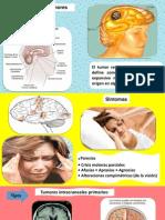 acv tumores.pptx