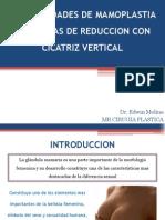 Generalidades de Mamoplastia y Tecnicas de Reduccion Con