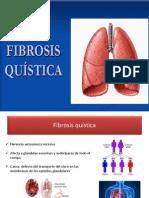 fibrosis quistica.pptx