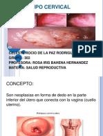 Polipo Cervical