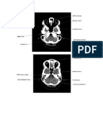 Anatomy Ct Scan