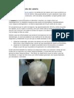 Cuándo Empieza La Alopecia