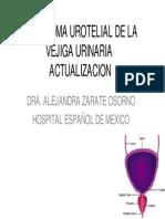 Carcinoma Urotelial