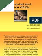 trastornos-visuales-baja-visic3b3nc.ppt
