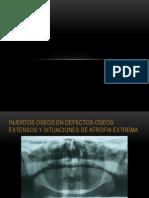 Injertos Oseos en Defectos Extensos y Situaciones de Atrofia Extrema 2